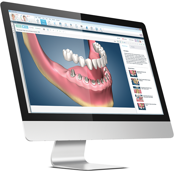 dental software on computer screens