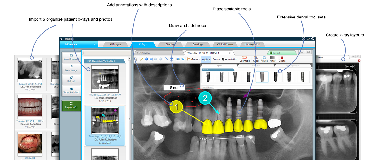 dental imaging software screenshots