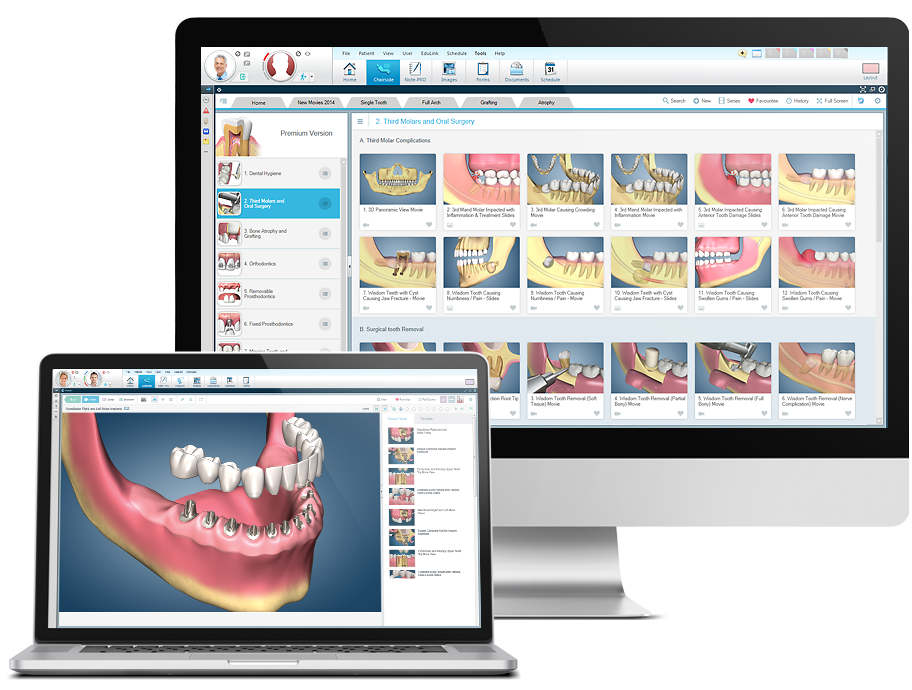 dental software screenshots on computers
